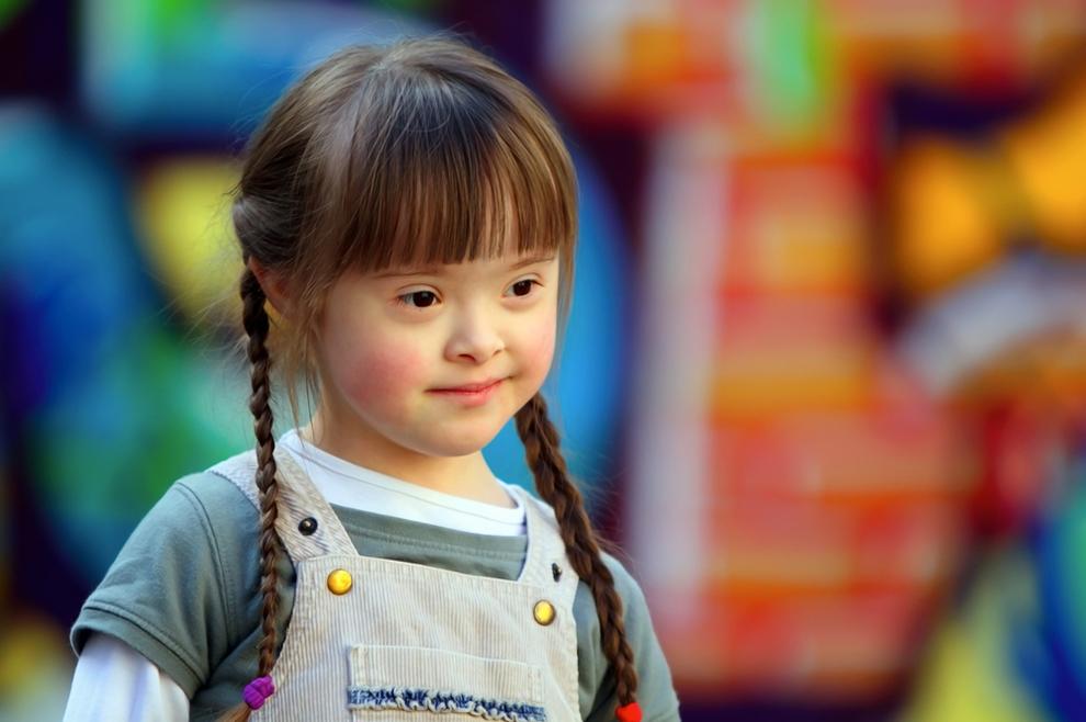 Hoće li Island svojom politikom 'iskorijeniti' djecu s Downovim sindromom?