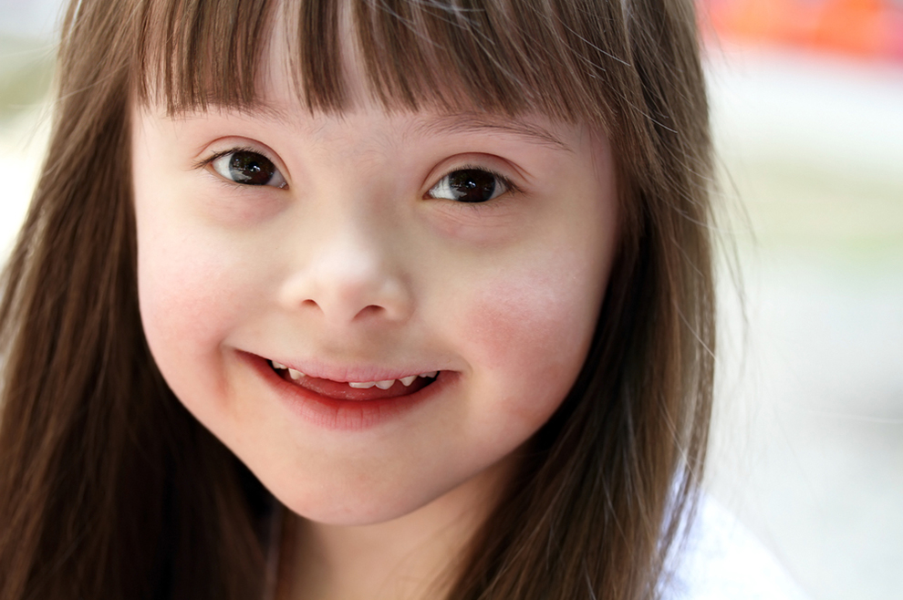 Novi zakon u Ohiou trebao bi prekinuti vršenje pobačaja nerođene djece sa sindromom Down