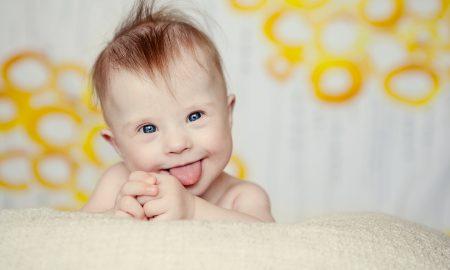 'Vaše dijete s Downovim sindromom može sutra neke duše spasiti za vječnost'
